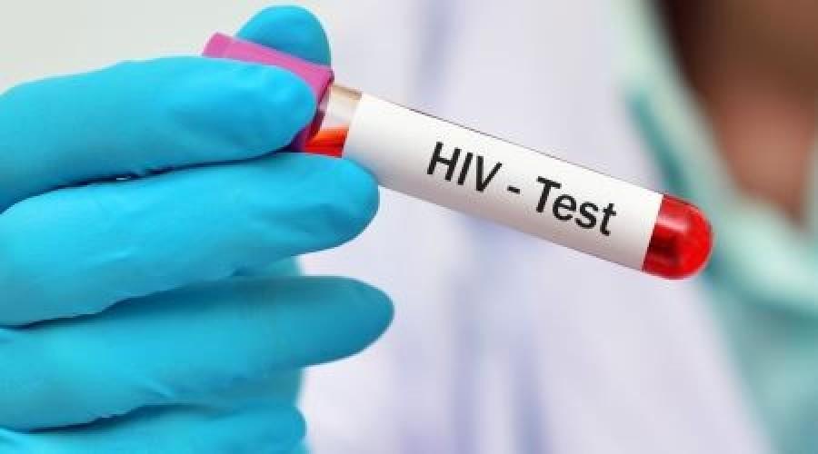 Már két HIV fertőzöttet gyógyult meg sikeresen ezzel a módszerrel