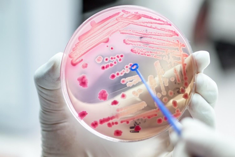 Egy titokzatos fertőzés csendben hálózza be az egész világot