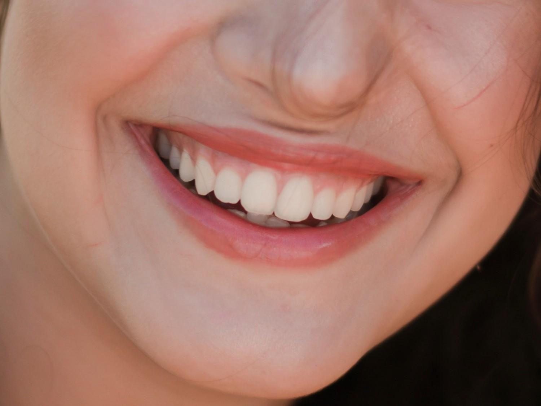 Vigyázz a fogaidra,  ápold őket természetesen!