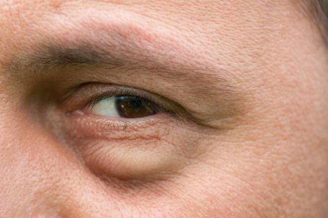 A szem alatti karikák komoly betegségeket jelezhetnek