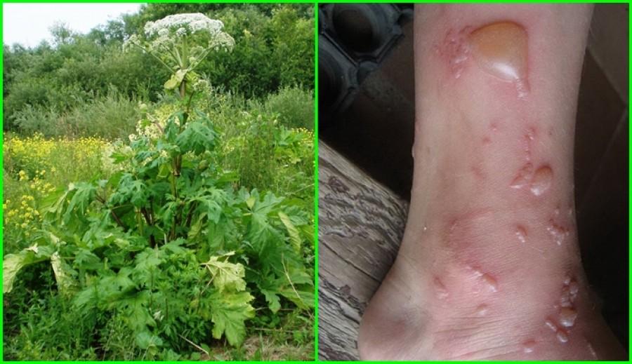 Figyelem! Maradandó károsodást okozó, veszélyes növény jelent meg Magyarországon!