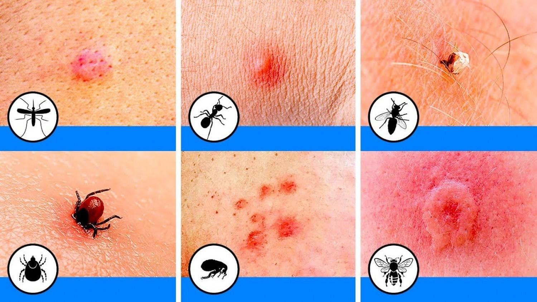 Tanuld meg felismerni ezt a 10 rovarcsípést!
