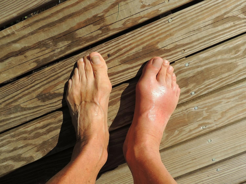 Figyeld ezt a három jelet a lábadon! Komoly betegséget jelezhetnek!